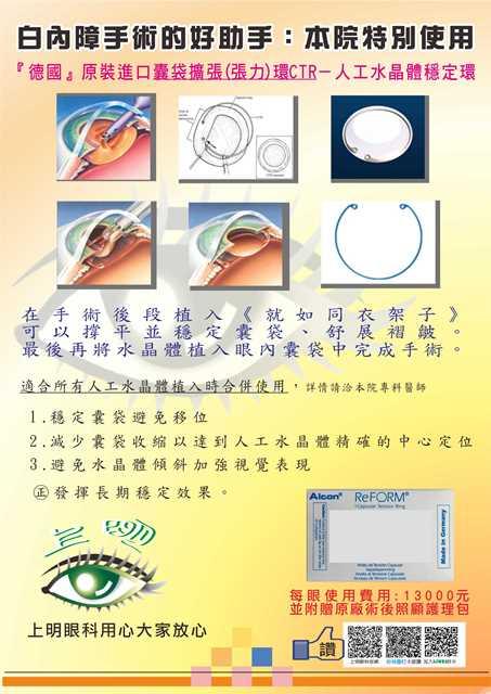 白內障手術的好助手囊袋擴張(張力)環